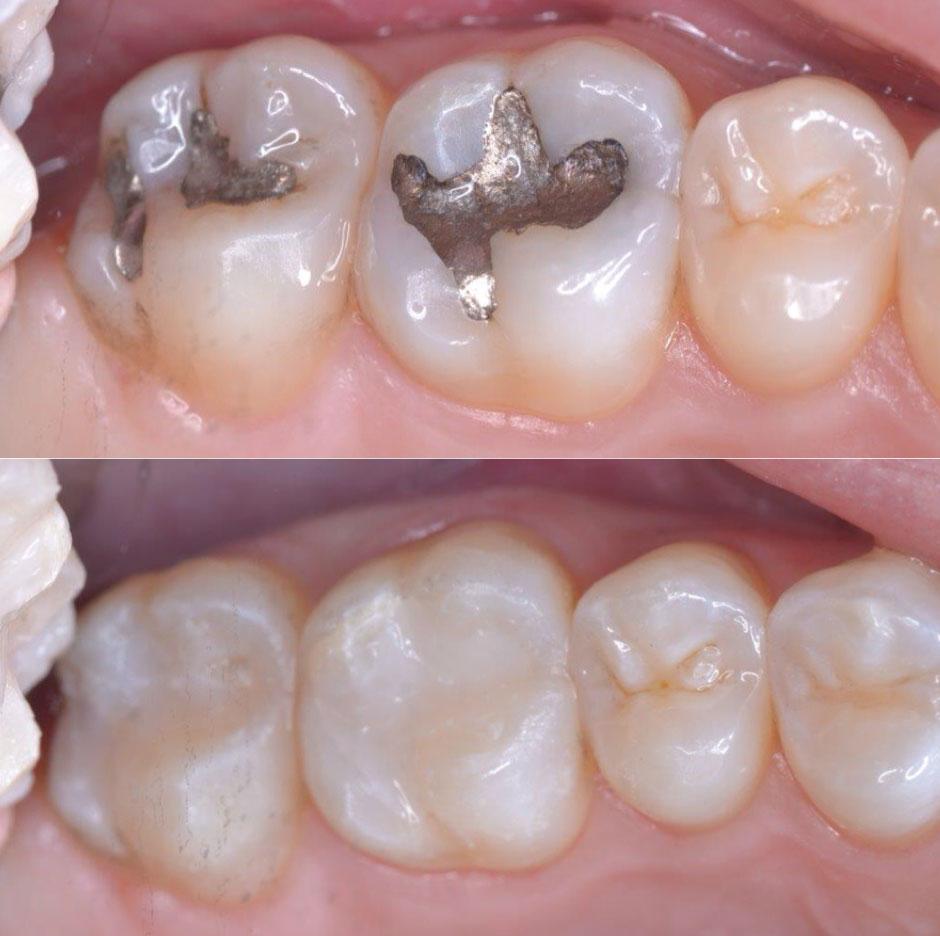 Holistic Family Dental Care Centennial Colorado