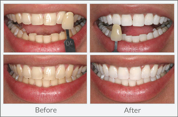 Teeth whitening can dramatically improve the cosmetics of your smile.