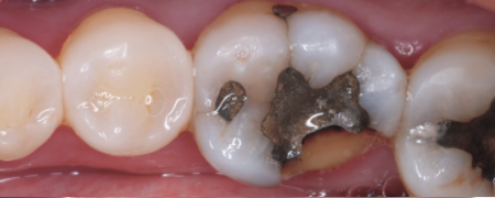 Dental crowns are a cosmetic way to replace the old filling.