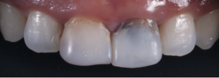 Dental crowns can significantly improve the cosmetics of teeth