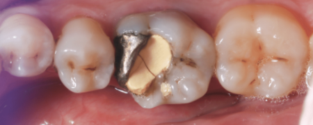 Dental crowns restore a tooth that has been broken or cracked