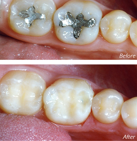 Mercury Filling Removal Before and After